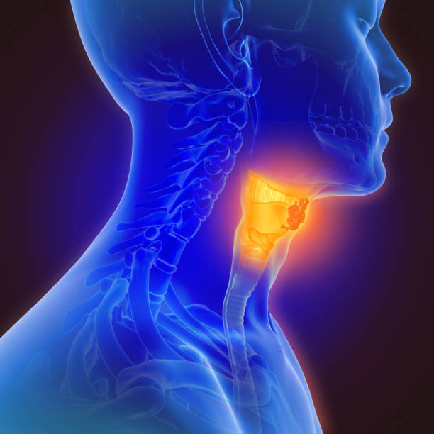 3d illustration of throat cancer Throat cancer refers to cancer of the voice box, the vocal cords, and other parts of the throat, such as the tonsils and oropharynx. Throat cancer is often grouped into two categories: pharyngeal cancer and laryngeal cancer. cancer cell stock pictures, royalty-free photos & images
