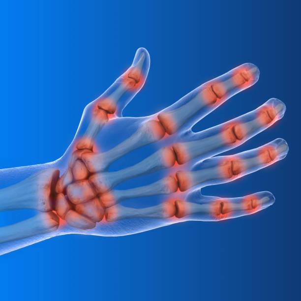 3d darstellung, die arthritis der hand - skelett hand stock-fotos und bilder
