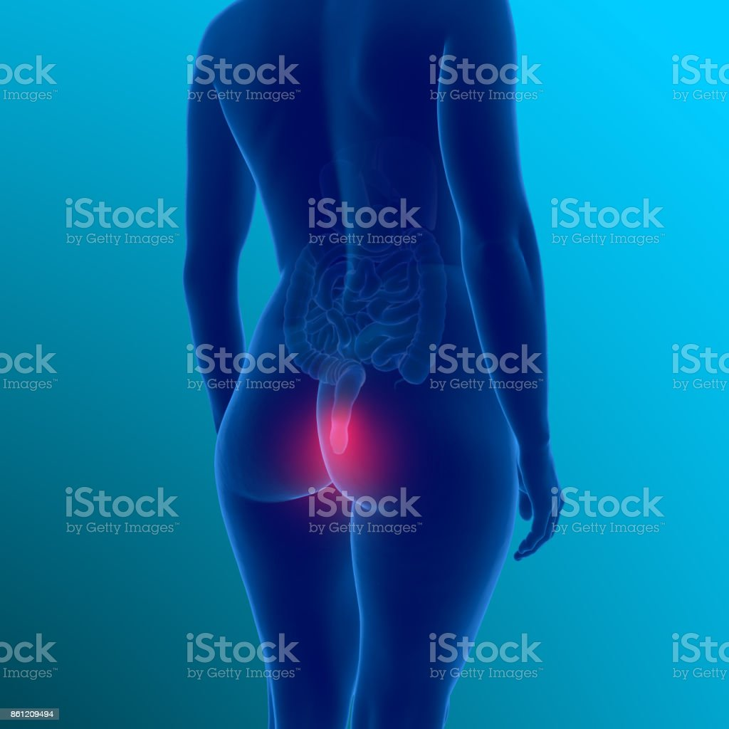 3d illustration showing female body with haemorrhoids - foto stock