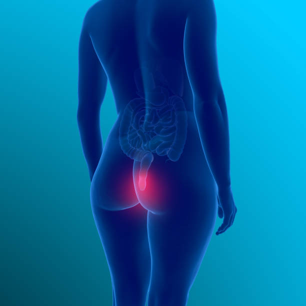 3d illustration showing female body with haemorrhoids stock photo