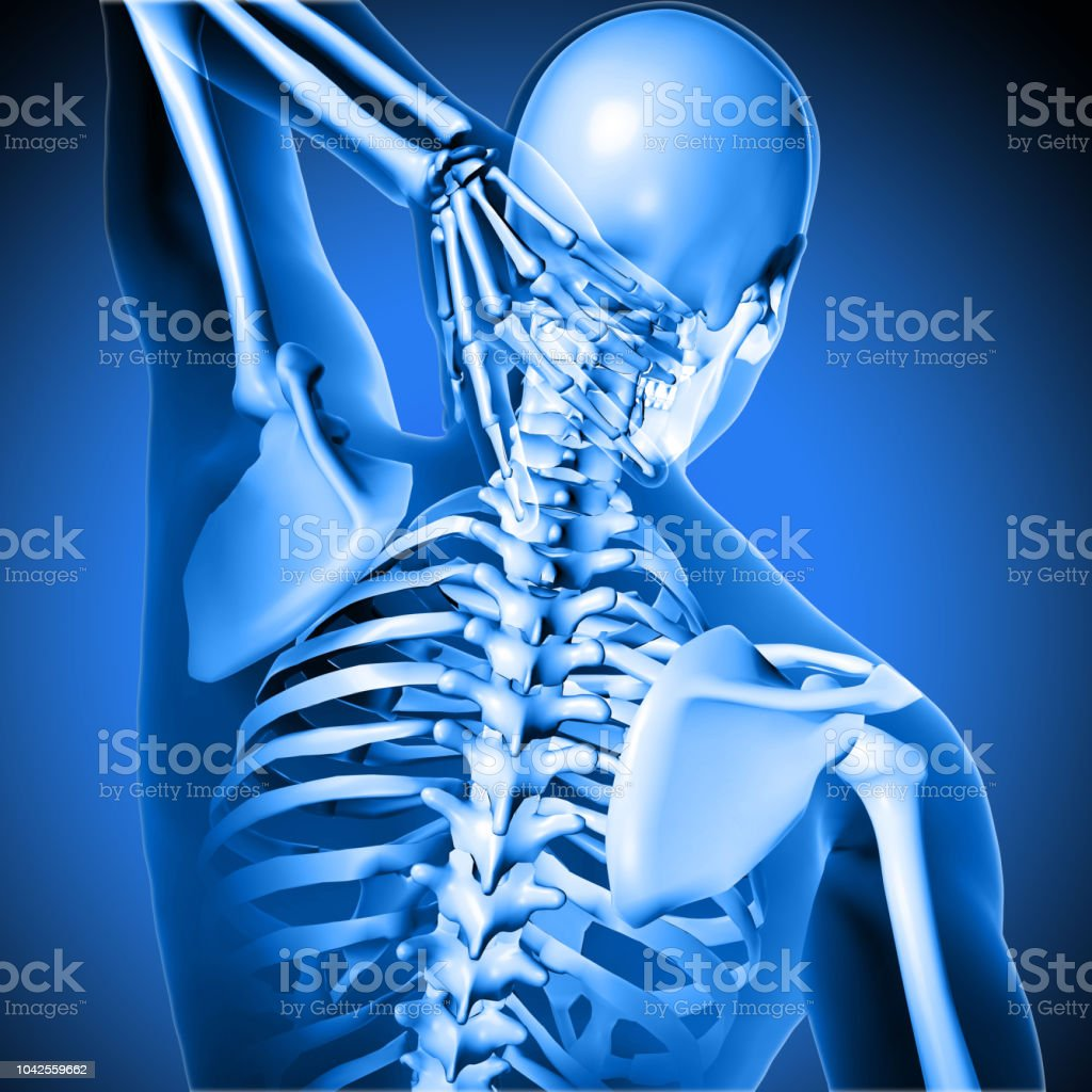 3d medical figure holding  neck stock photo