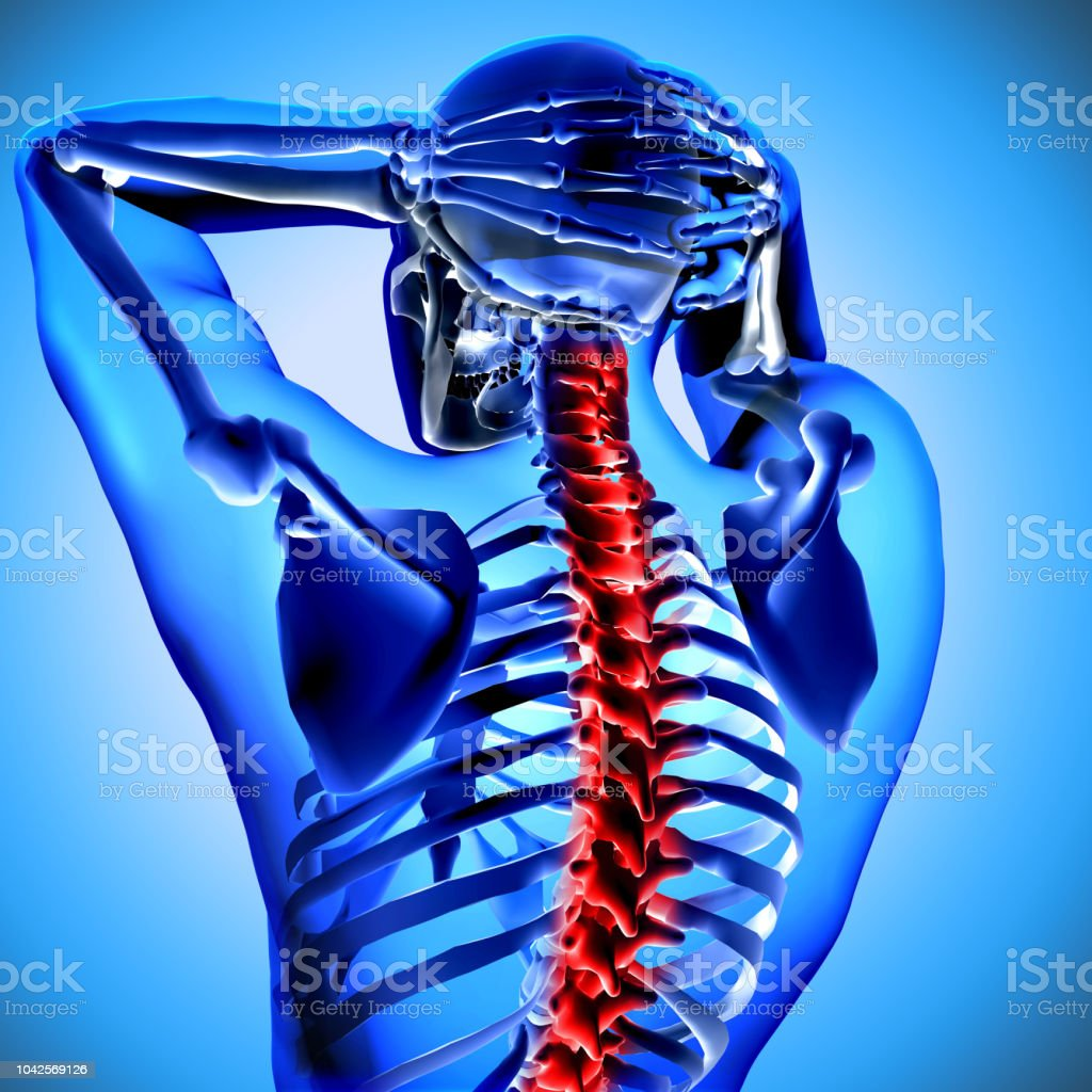 3d medical figure with neck bones highlighted stock photo