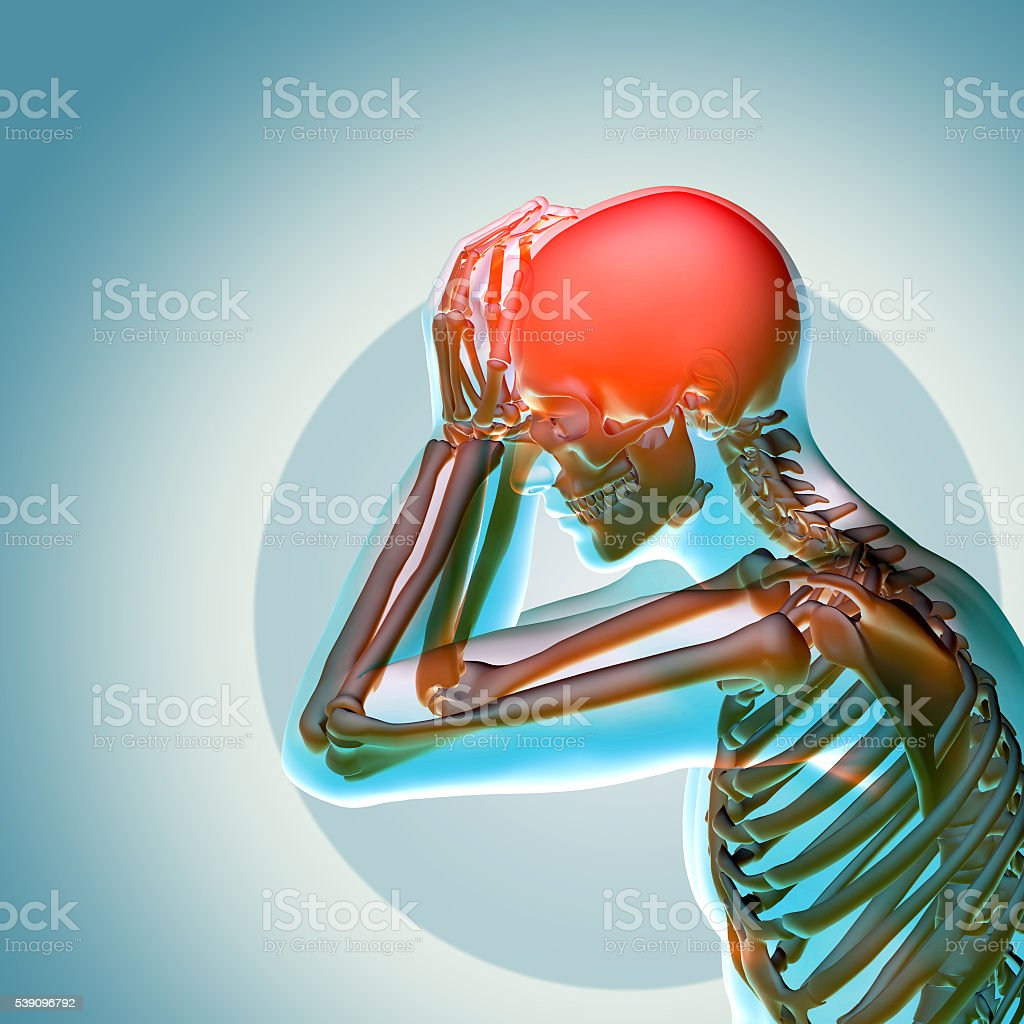 3d medical illustration headache stock photo