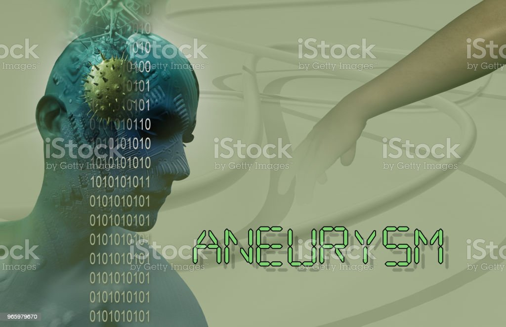 3d Medical illustration of brain aneurysm - Royalty-free Anatomy Stock Photo