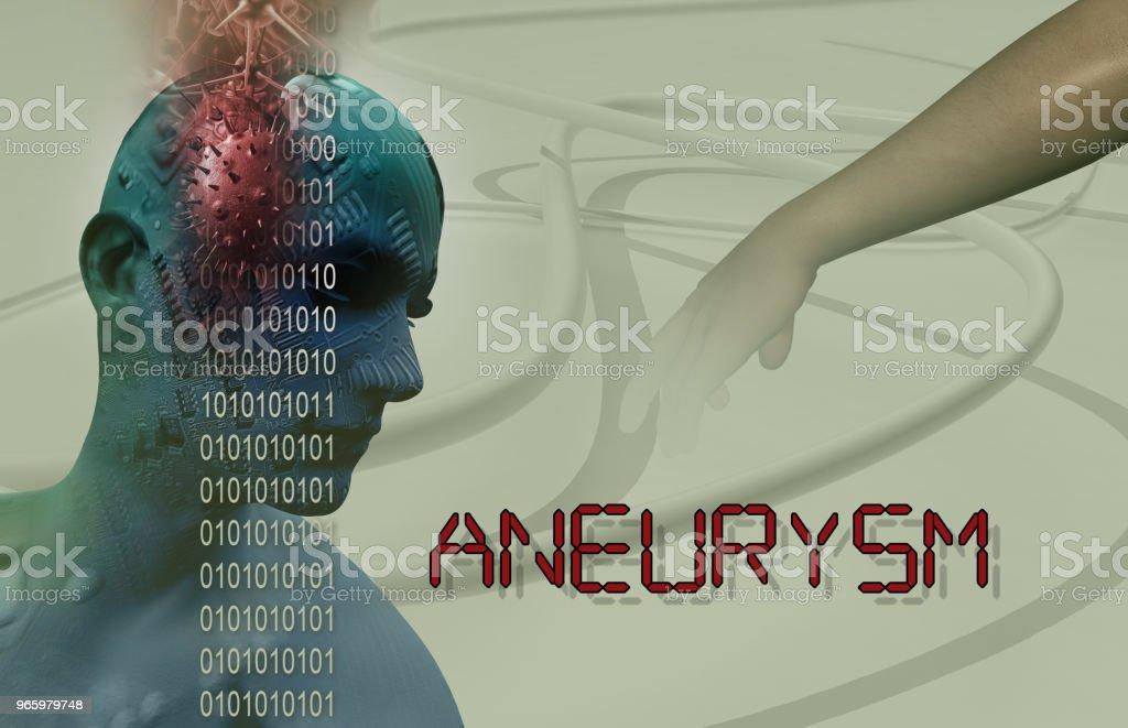 3D medizinische Illustration der Hirn-Aneurysma - Lizenzfrei Anatomie Stock-Foto