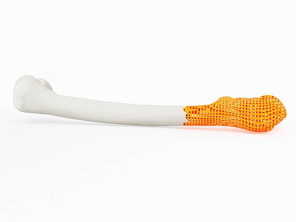 3d printed bone stock photo