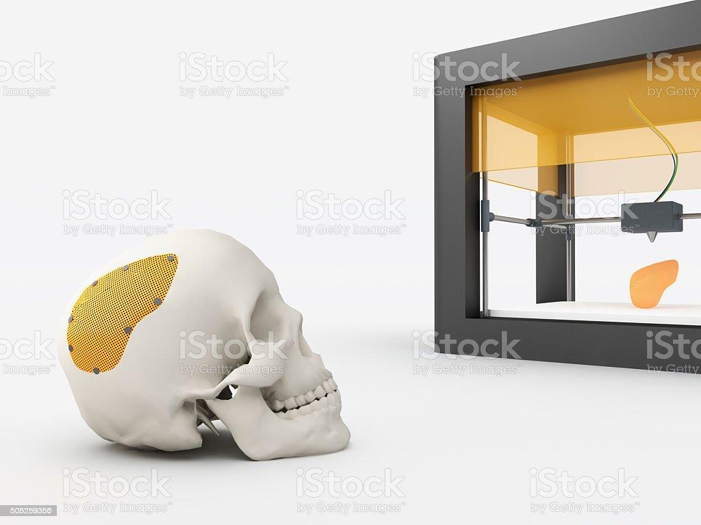 3d printed cranium stock photo
