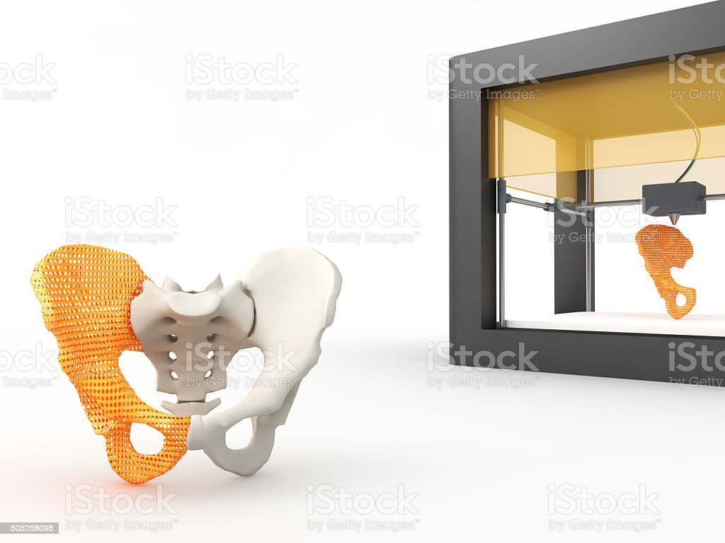 3d printed hip bone stock photo