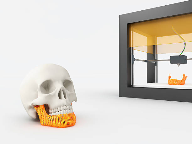 3d printed jaw stock photo