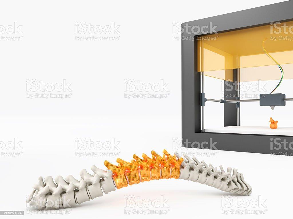 3d printed spine bildbanksfoto