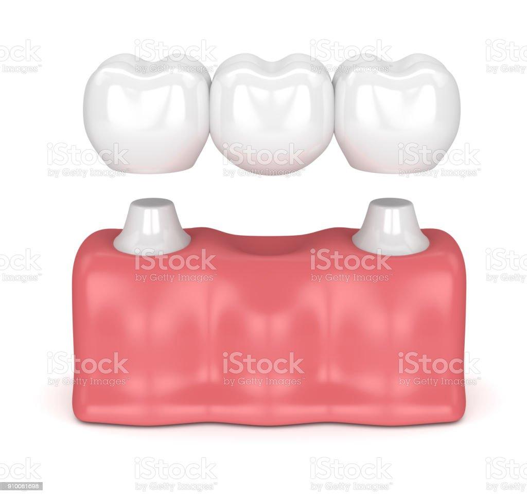 rendu 3D du pont dentaire avec couronnes dentaires - Photo