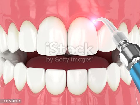 3d render of dental diode laser used to treat gums. The concept of using laser therapy in the treatment of gums