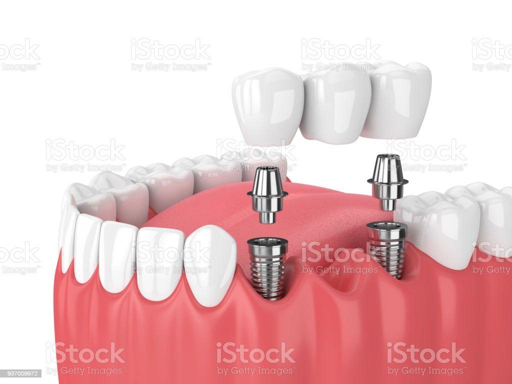 rendu 3D de mâchoire et les implants avec un pont dentaire - Photo