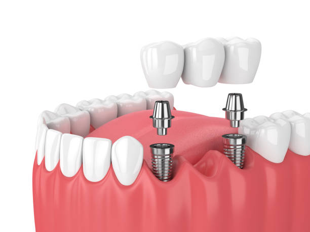 3d render of jaw and implants with dental bridge - dental implants stock photos and pictures