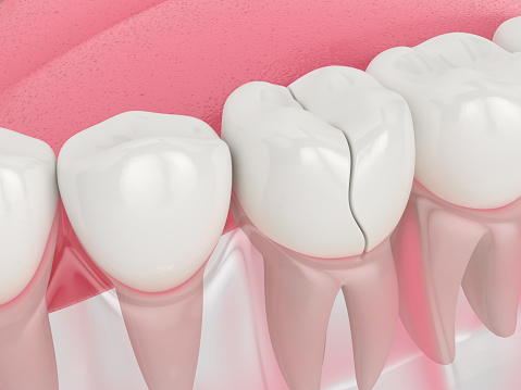 3d render of jaw with treatable cracked tooth over white background. Types of broken teeth concept.