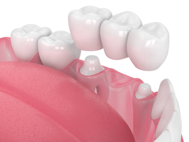3d render of jaw with dental bridge 3d render of jaw with dental bridge  over white background tooth crown stock pictures, royalty-free photos & images