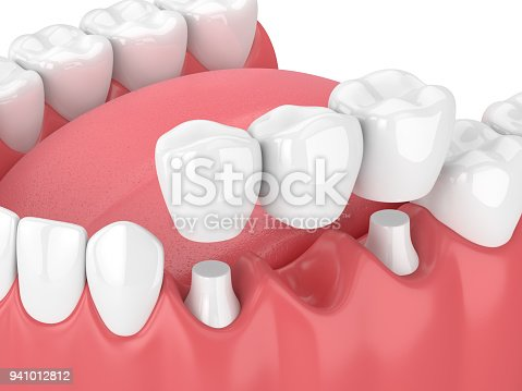 3d render of jaw with dental bridge  over white background