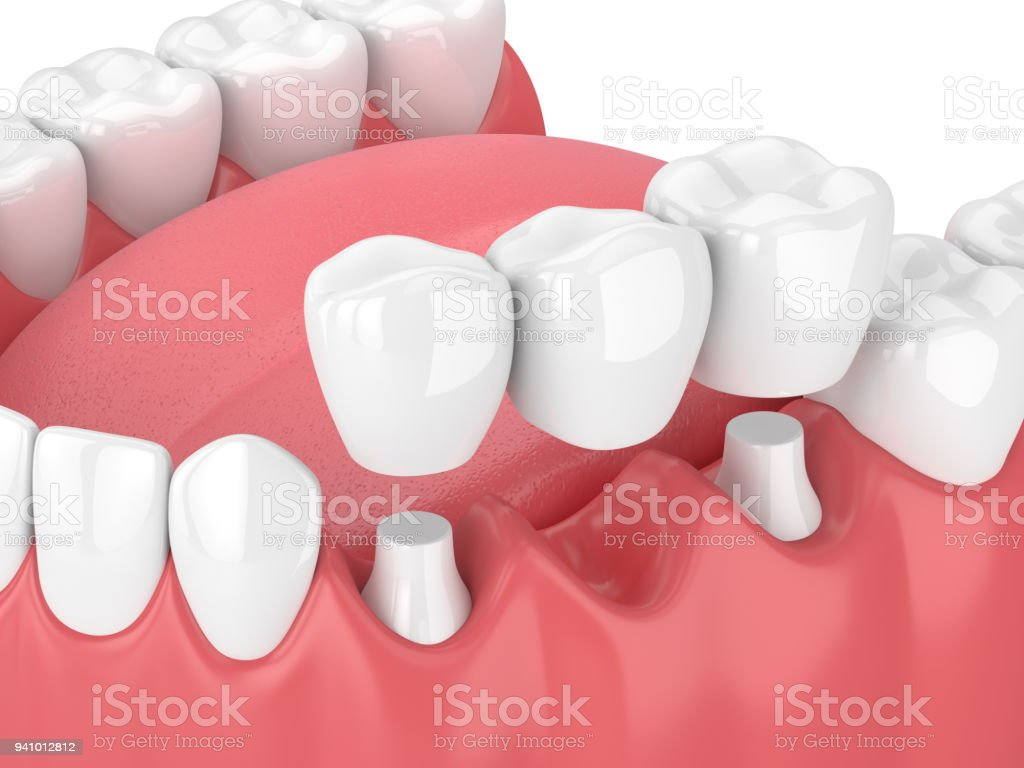 3d render of jaw with dental bridge stock photo