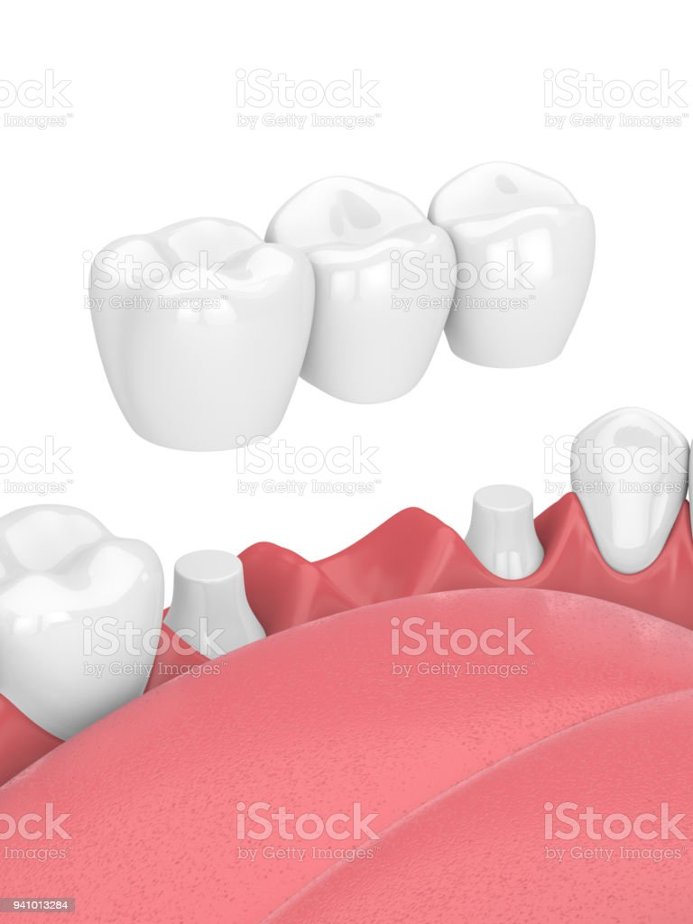 rendu 3D de mâchoire avec pont dentaire - Photo