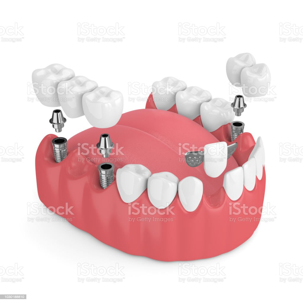 3d render of jaw with dental implants and bridges stock photo