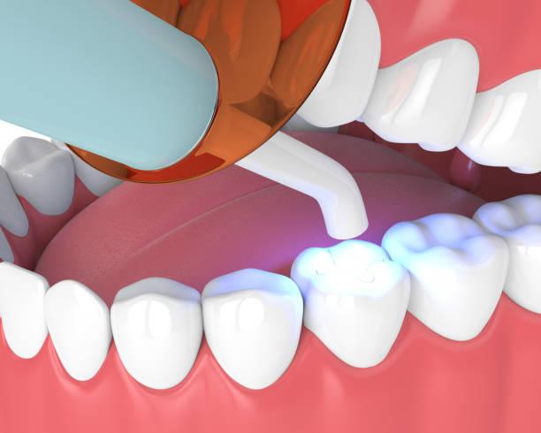 3d render des unterkiefers mit dental polymerisation lampe und licht ausgehärteten inlay - inlay zahn stock-fotos und bilder