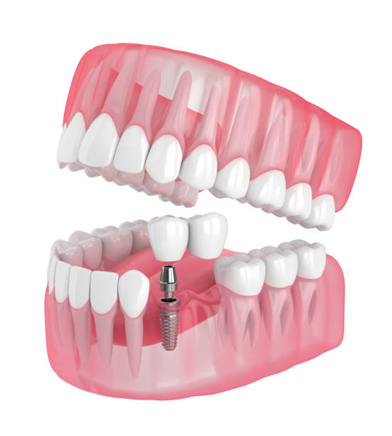 3d render of jaw with implant supported dental cantilever bridge 3d render of jaw with implant supported dental cantilever bridge isolated over white background anchor athlete stock pictures, royalty-free photos & images