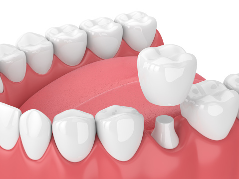 3d render of jaw with teeth and dental crown restoration over white background