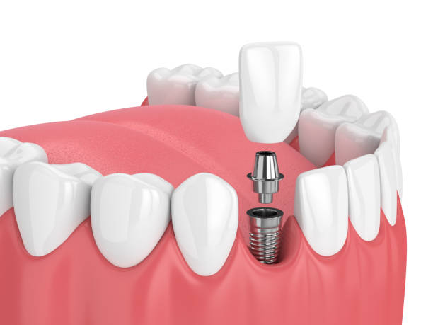 3d render of jaw with teeth and dental incisor implant - dental implants stock photos and pictures