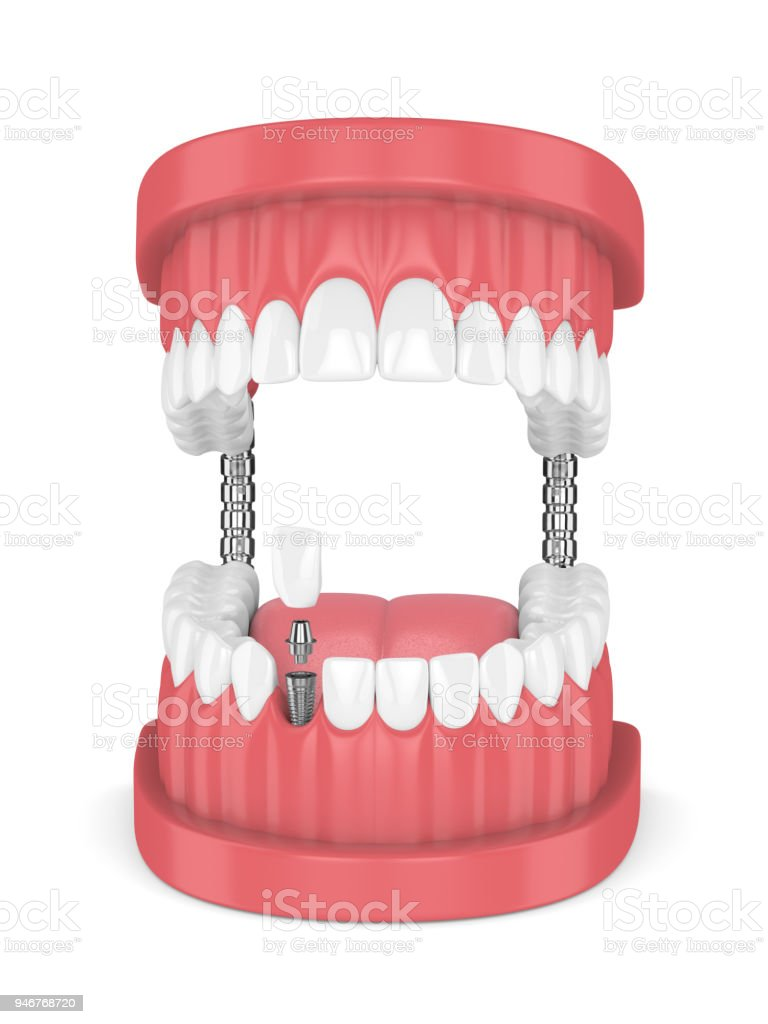 3d Render Of Jaw With Teeth And Dental Incisor Implant Stock Photo ...