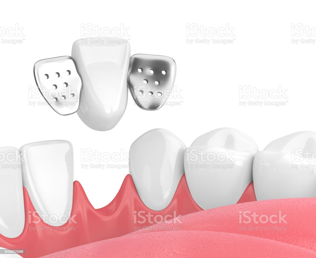 3d Render Of Jaw With Teeth And Maryland Bridge Stock Photo & More ...