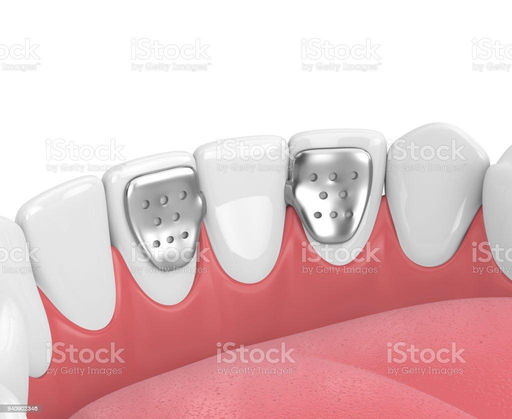 rendu 3D de mâchoire avec des dents et maryland bridge - Photo