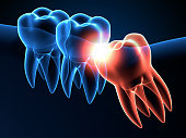 istock 3d render of jaw x-ray with wisdom mesial impaction 1254343528