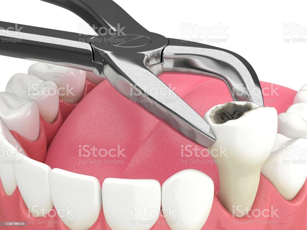 3d teruggave van onderkaak met tandextractie - Royalty-free Anatomie Stockfoto