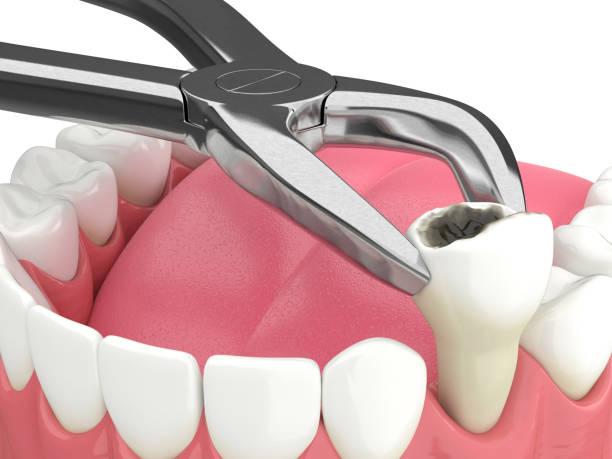 3d teruggave van onderkaak met tandextractie - dentine stockfoto's en -beelden