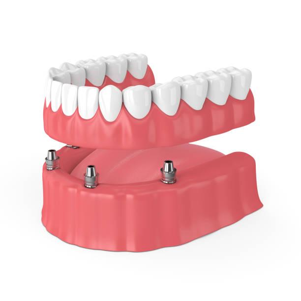 3d render abnehmbare voll implantat-prothese - menschlicher mund stock-fotos und bilder