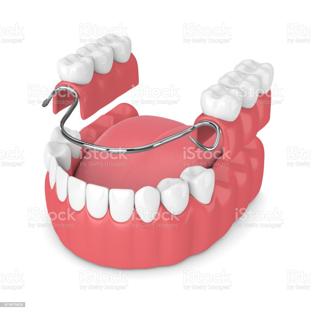 3d render of removable partial denture stock photo