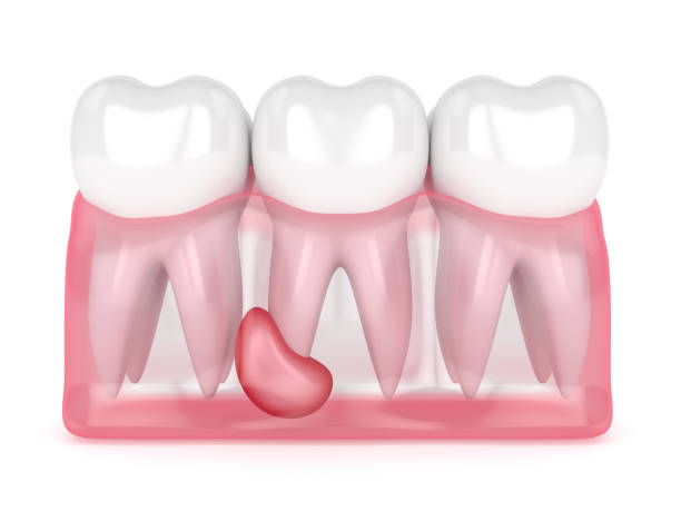 3d render of teeth in gums with cyst - cyst stock pictures, royalty-free photos & images