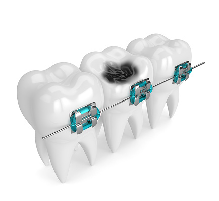 istock 3d render of teeth with braces and caries 900126882