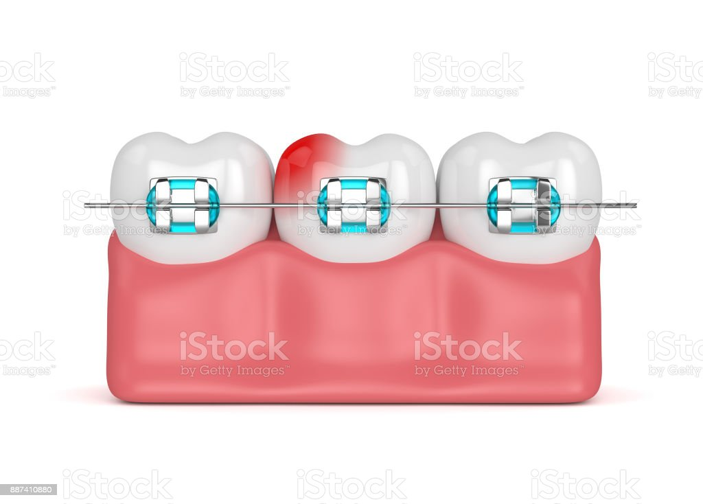 3d render of teeth with braces stock photo