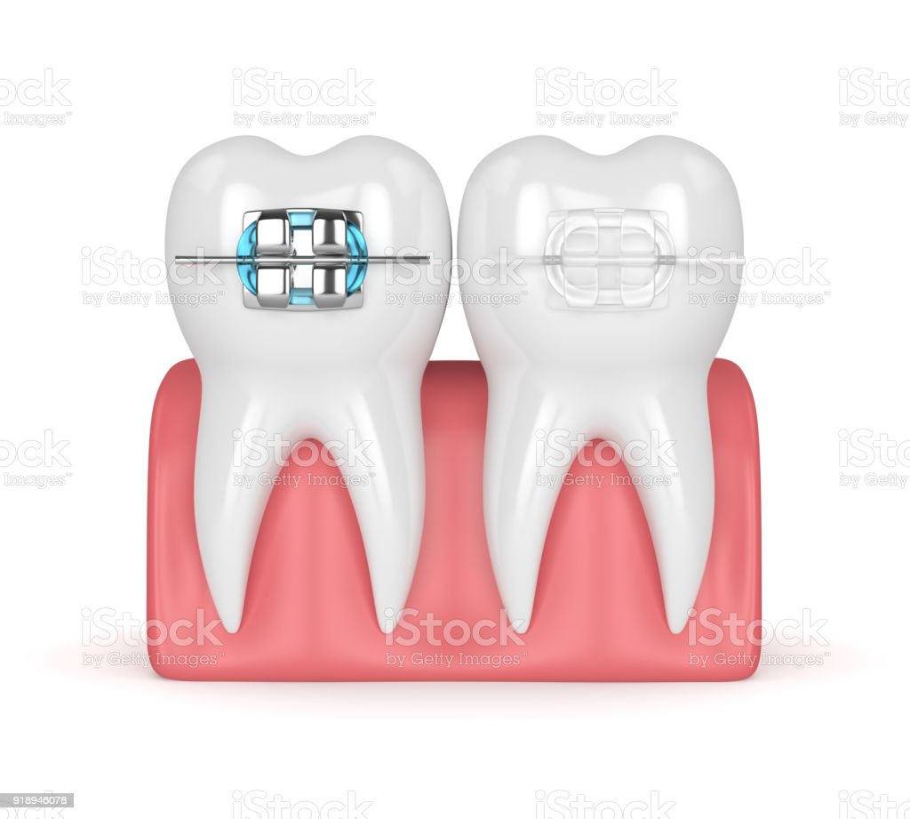 3d render of teeth with ceramic and metal braces stock photo