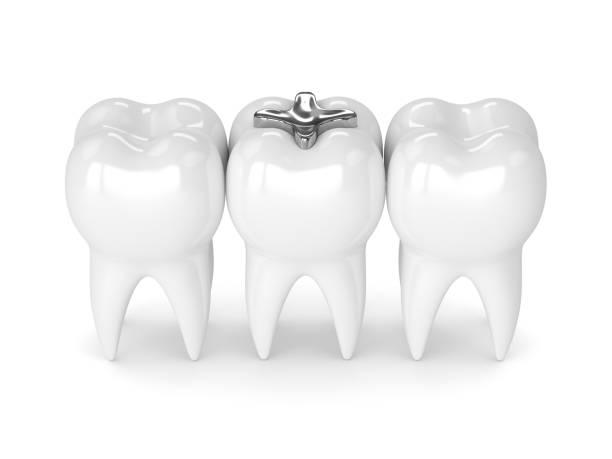 3d rendering der zähne mit zahnmedizinisches amalgam-füllung - inlay zahn stock-fotos und bilder
