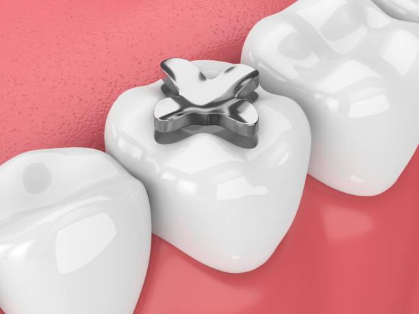 3d rendering der zähne mit zahnamalgam inlay füllung - inlay zahn stock-fotos und bilder