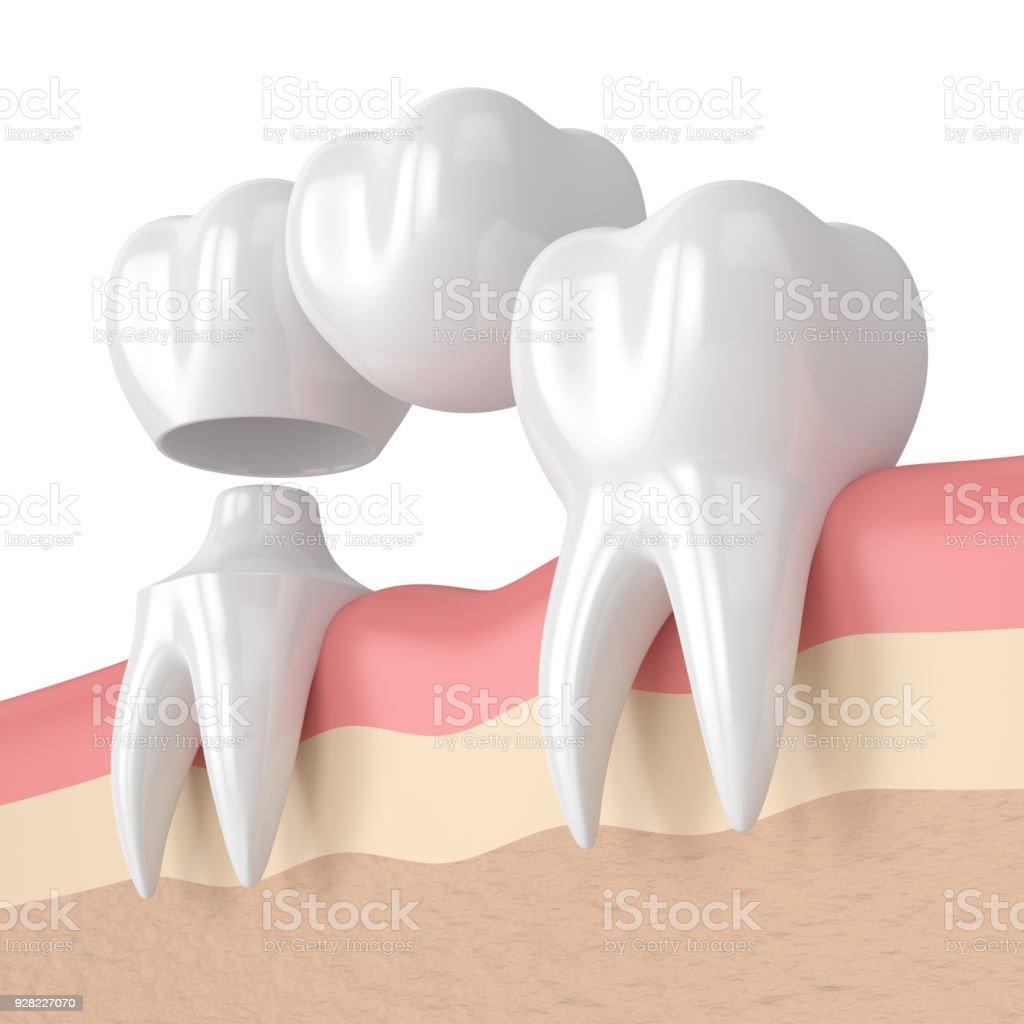 rendu 3D des dents avec dentaire pont cantilever - Photo