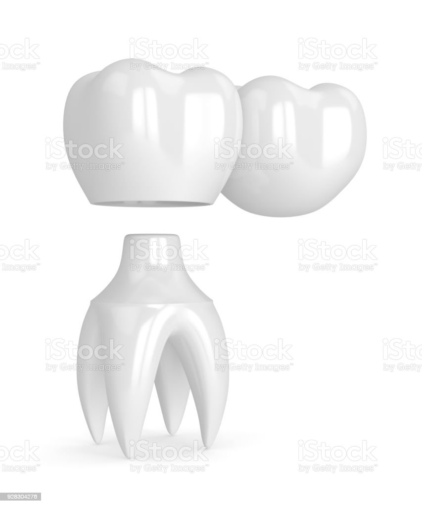 3d Render Of Teeth With Dental Cantilever Bridge Stock Photo & More ...
