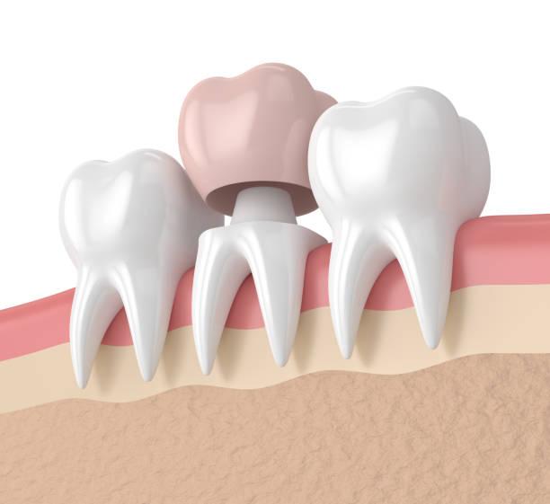 3d rendering der zähne mit zahnkrone restaurierung - inlay zahn stock-fotos und bilder