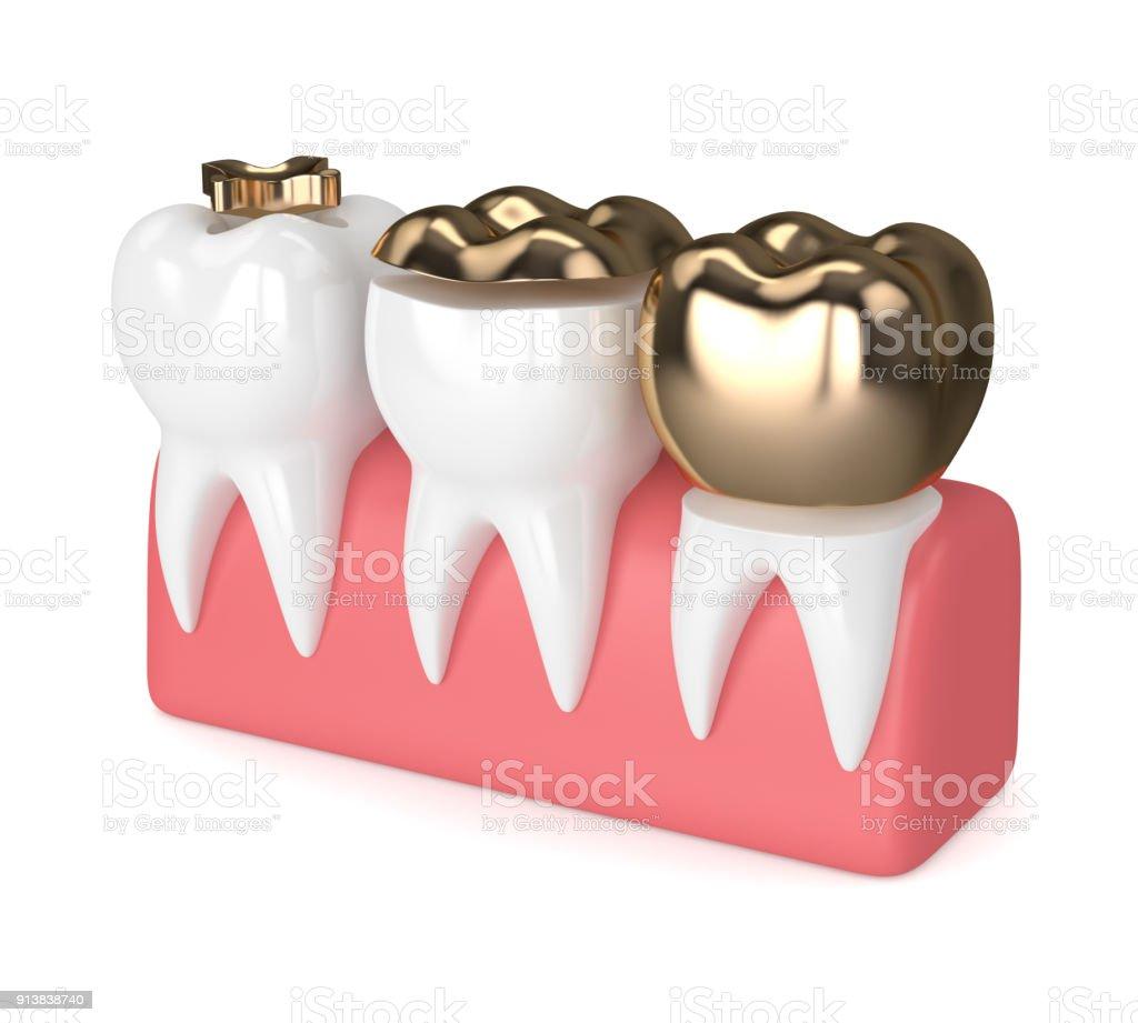 Fotografía de Render 3d De Dientes Con Relleno De Oro Dental y más ...