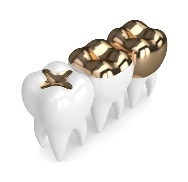 3d rendering der zähne mit gold zahnfüllungen - inlay zahn stock-fotos und bilder