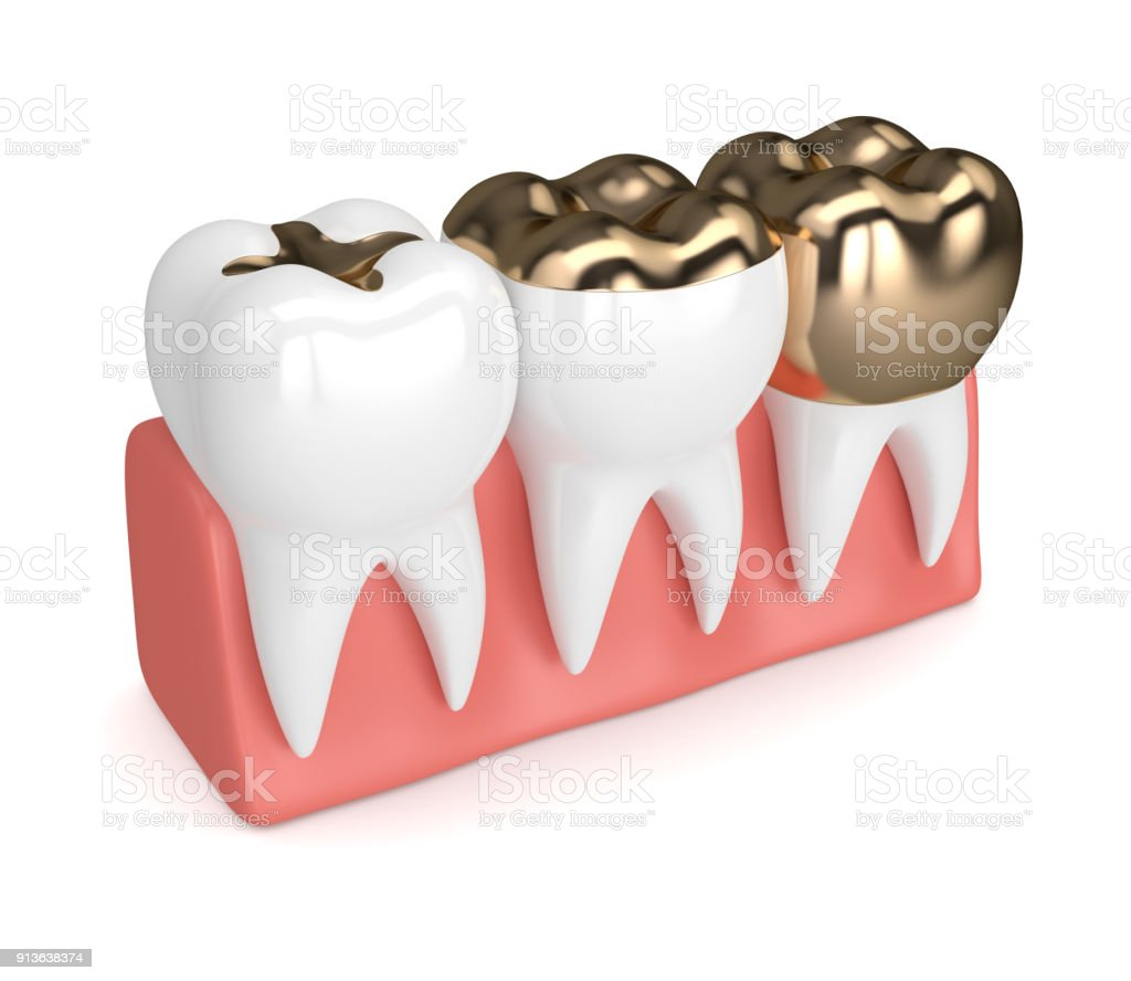 3d Render Of Teeth With Dental Gold Fillings Stock Photo & More ...