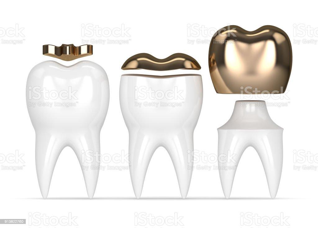 3d Rendering Der Zähne Mit Gold Zahnfüllungen Stock-Fotografie und ...