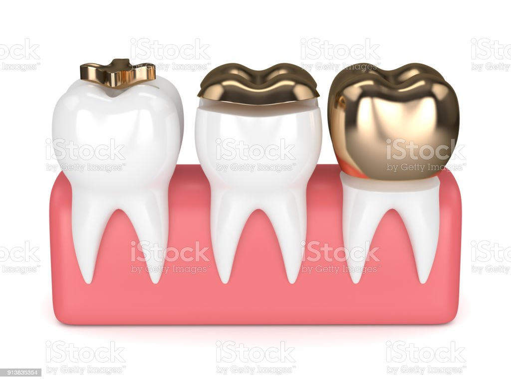 3d Render Of Teeth With Dental Gold Fillings Stock Photo More